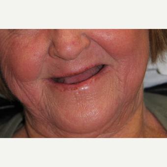 All-on-4 Dental Implants before 2373353