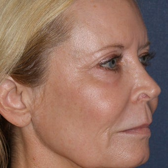 64 year old woman treated with Laser Resurfacing after 1786310