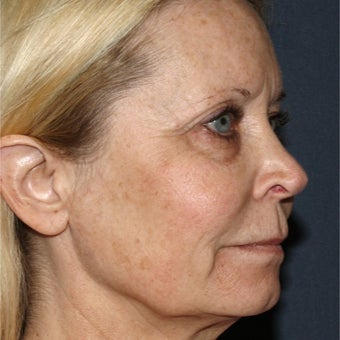 64 year old woman treated with Laser Resurfacing before 1786310