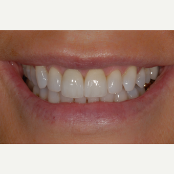 55-64 year old woman treated with Dental Implant and Dental Crown after 3433827