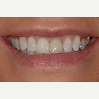 55-64 year old woman treated with Dental Implant and Dental Crown before 3433827