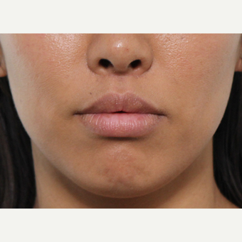 Lip Lift Procedure after 3490440