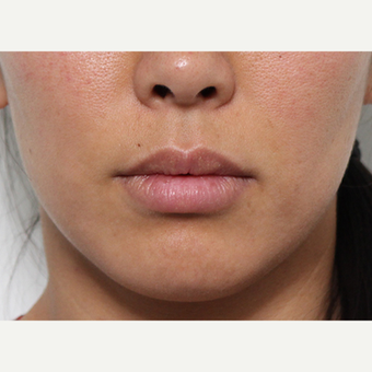 Lip Lift Procedure before 3490440