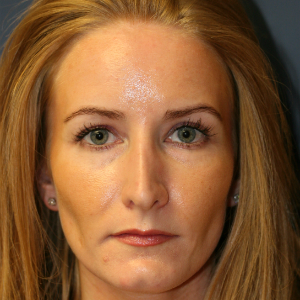 35-44 year old woman treated with Rhinoplasty before 3559715