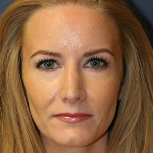 35-44 year old woman treated with Rhinoplasty after 3559715