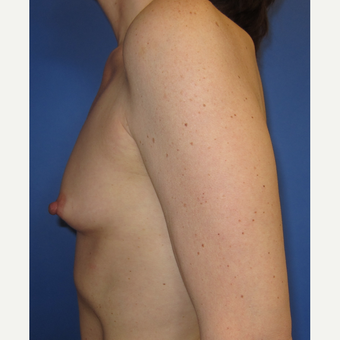 45-54 year old woman treated with Breast Augmentation (R. 286cc, L. 304cc) before 3309838
