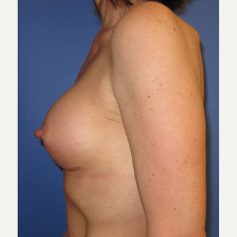 45-54 year old woman treated with Breast Augmentation (R. 286cc, L. 304cc) after 3309838
