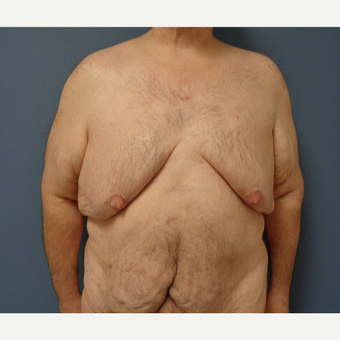 45-54 year old man treated with Male Breast Reduction before 3628566