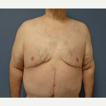 45-54 year old man treated with Male Breast Reduction after 3628566