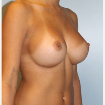 25-34 year old woman treated with Breast Augmentation after 3810044