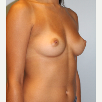 25-34 year old woman treated with Breast Augmentation before 3810044