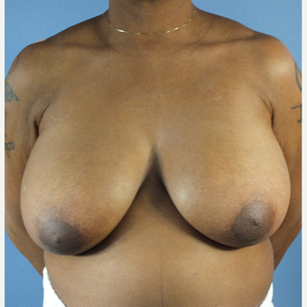 55-64 year old woman treated with Breast Reduction before 3163172