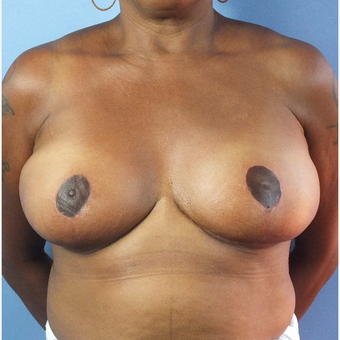 55-64 year old woman treated with Breast Reduction after 3163172