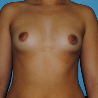 20 Year old with saline implant A cup to small C before 3168654