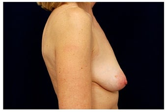 Breast Implants before 1332531