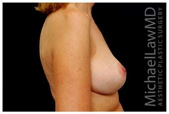 Breast Implants after 1332531