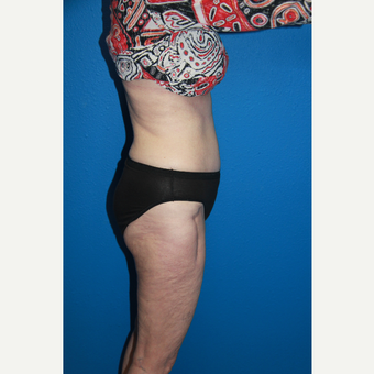 65-74 year old woman treated with Tummy Tuck after 2723679