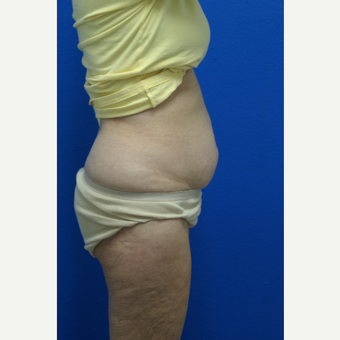 65-74 year old woman treated with Tummy Tuck before 2723679