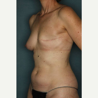 45-54 year old woman treated with Breast Reconstruction before 3484849