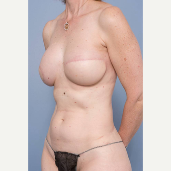 45-54 year old woman treated with Breast Reconstruction after 3484849