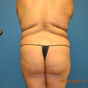 18-24 year old woman treated with Fat Transfer before 3611005