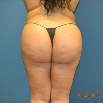 18-24 year old woman treated with Fat Transfer after 3611005