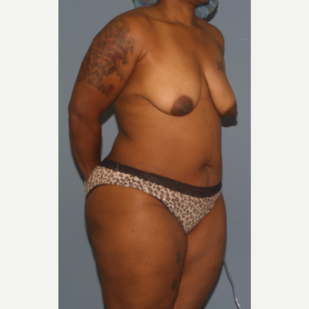 35-44 year old woman treated with Breast Lift before 3453362