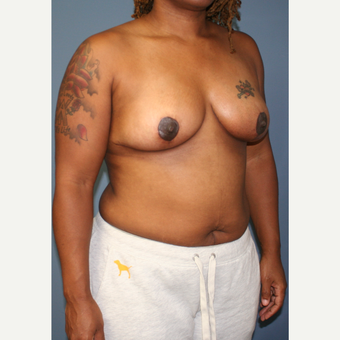 35-44 year old woman treated with Breast Lift after 3453362