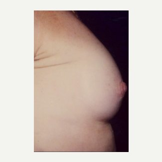45-54 year old woman treated with Nipple Surgery after 3072310