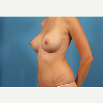 25-34 year old woman treated with Breast Implants after 3787144