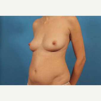 25-34 year old woman treated with Breast Implants before 3787144