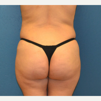 18-24 year old woman treated with Brazilian Butt Lift before 3170061