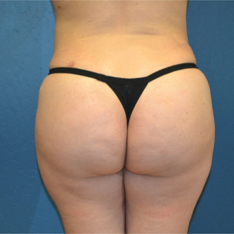 18-24 year old woman treated with Brazilian Butt Lift after 3170061