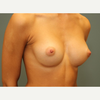 18-24 year old woman requesting Breast Augmentation after 3031188