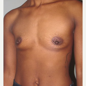 25-34 year old woman treated with Breast Augmentation before 3756781