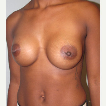 25-34 year old woman treated with Breast Augmentation after 3756781