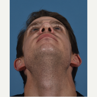 25-34 year old man treated with Revision Rhinoplasty after 3434542