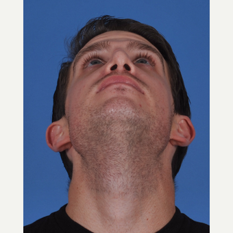 25-34 year old man treated with Revision Rhinoplasty before 3434542