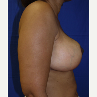 45-54 year old woman treated with Breast Reduction after 2987229