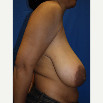 45-54 year old woman treated with Breast Reduction before 2987229