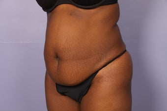 No Drain Tummy Tuck before 1195888