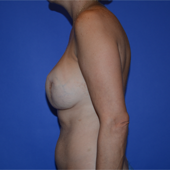 35-44 year old woman after Breast Reconstruction Revision before 3499865