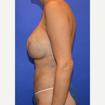 35-44 year old woman after Breast Reconstruction Revision after 3499865