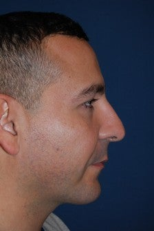 Male with Cheek and Chin Implants after 1140307