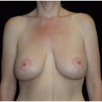 41 year old woman treated with Breast Lift with Implants after 3092830