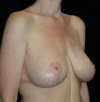 41 year old woman treated with Breast Lift with Implants 3092830