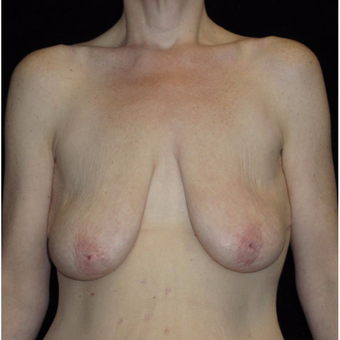 41 year old woman treated with Breast Lift with Implants before 3092830
