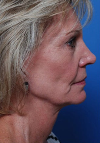 Woman with hollow cheeks seeking permanent cheek augmentation 1287703