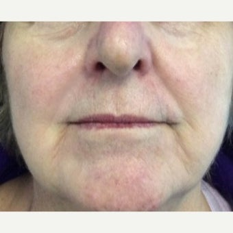 65-74 year old woman treated with Radiesse