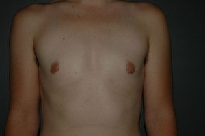 FTM top surgery. Keyhole approach with areola resizing and nipple reduction. after 1130788